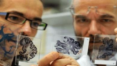"Photo of اكتشاف بروتين مضاد لـ ""موت الدماغ"""