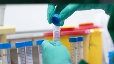 Photo of علماء روس يقترحون طريقة جديدة في علاج فيروس كورونا